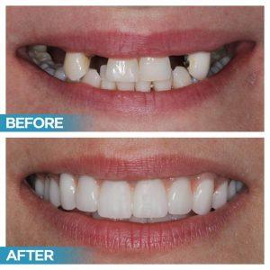 Affordable Dental Implant Houston