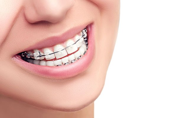 Braces-dentist-Houston-smile