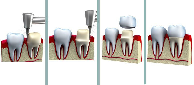 Tooth Crown processes