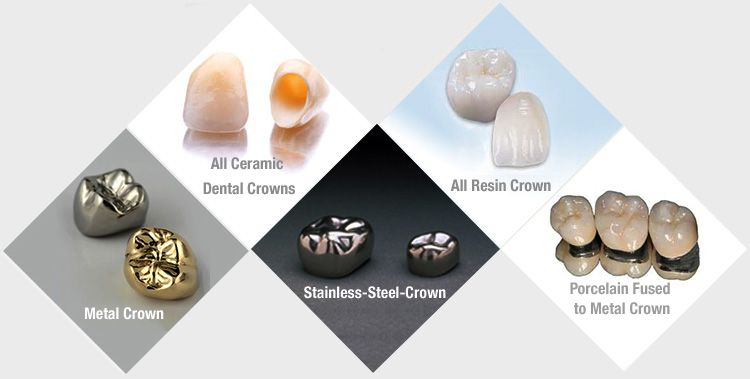Types of tooth crown