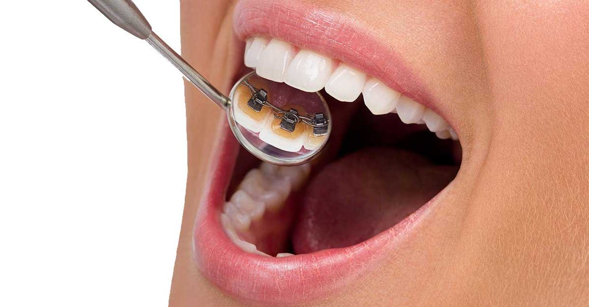 lingual-braces-dentist-houston