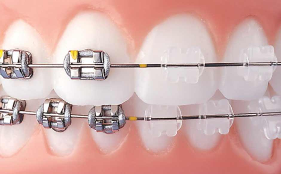 metal-dentist-hoston-clear-braces.jpg