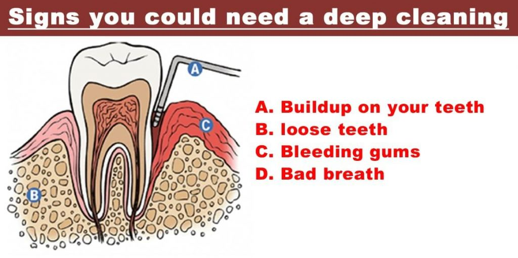 Signs of Deep tooth cleaning
