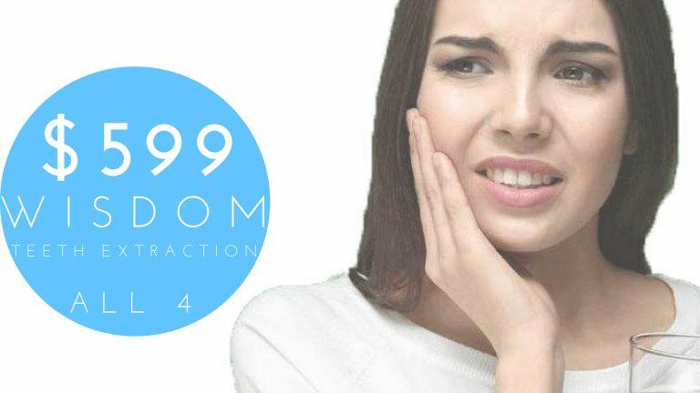 Wisdom teeth extraction special dental special