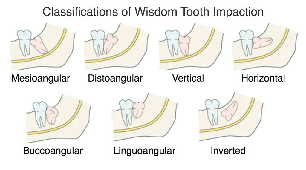 impacted wisdom tooth classification by angle of