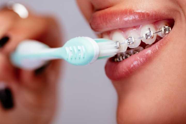 brushing-with-braces-DDIA