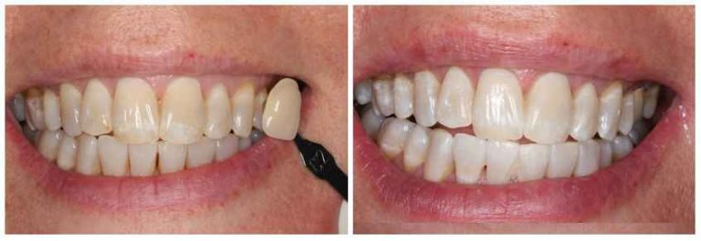 teeth_whitening_Dentist-before_after image