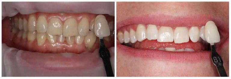teeth_whitening_before_after image