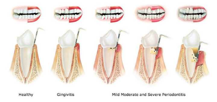 healthy teeth and moderate to severe gingivitis illustration