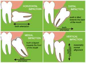 impacted wisdom teeth types by direction of tooth