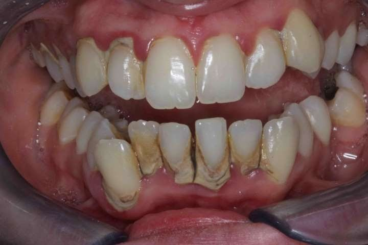 misaligned-teeth-with-gum-showing-bite