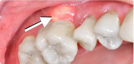 pus between gums and teeth