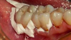 when a dental crown is loose put temporary dental cement