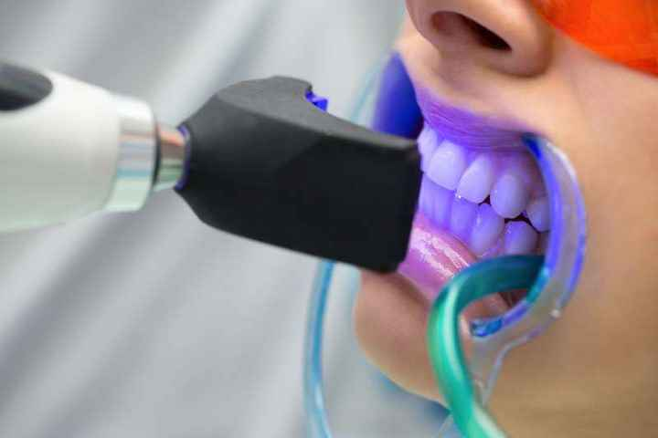 a patient getting teeth whitening with ultraviolet light