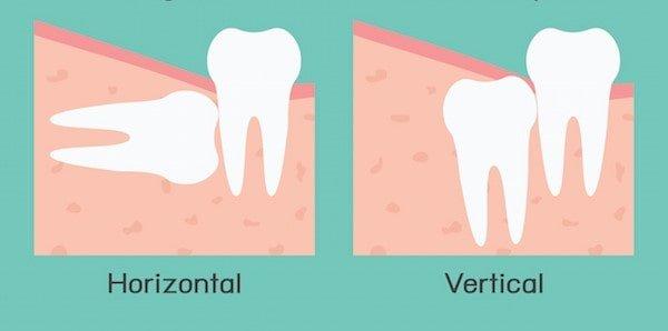 wisdom-teeth-eruption-angles-horizontal-min