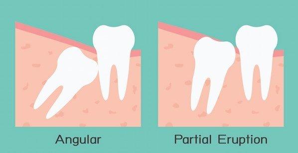 wisdom-teeth-eruption-angles-partial-min