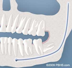 impacted wisdom teeth complete bony