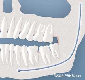 soft tissue impacted wisdom teeth removal