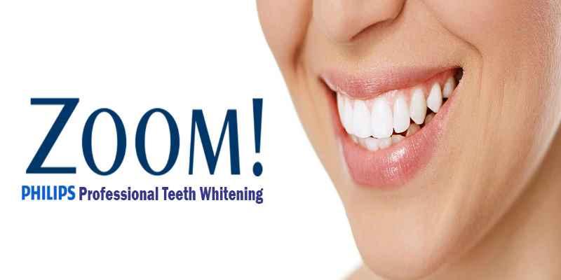 zoom-teeth-whitening-header