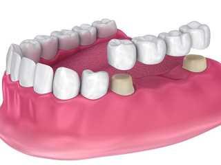 4 unit dental bridge image 320x240