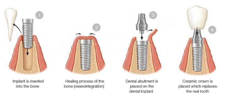 Dental-Implant-Procedure-Step-by-step