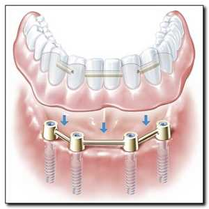 Dental Implants Over Denture