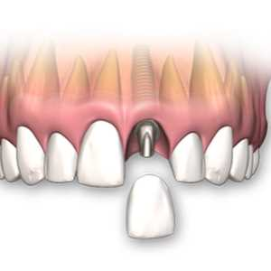 SIngle-Tooth-Dental-Implants