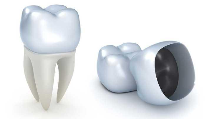 Dental crown special houston tx