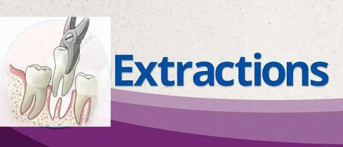 Affordable tooth extraction dentist in houston tx banner