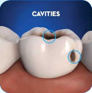 Dental Cavities on a teeth