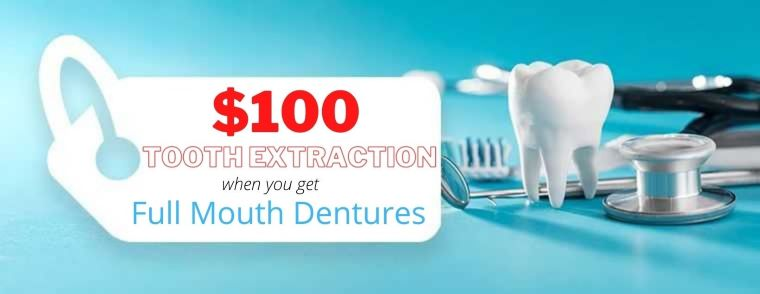 100 tooth extraction cost with dentures flyers keem smile