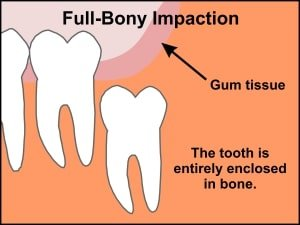 fully-bony_tooth_impaction