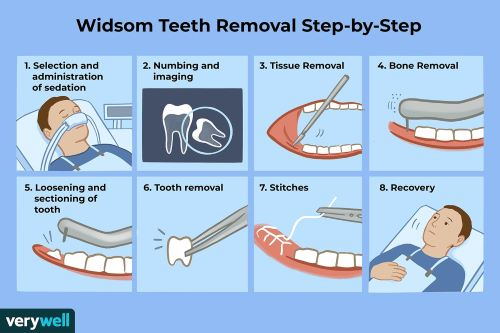 how-are-wisdom-teeth-removed-step by step