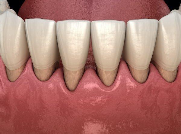 receeding-gums due to gum-disease