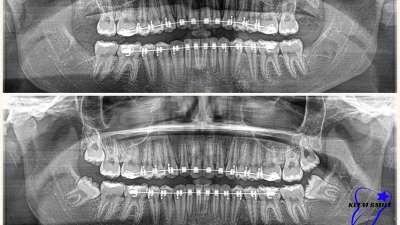 impacted wisdom tooth removal with braces
