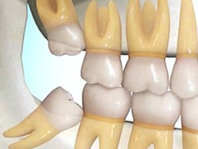 model-showing-impacted-upper-and-lower-right-wisdom-teeth-min