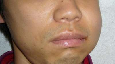 swollen cheek after impacted wisdom tooth removal